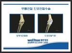 관절수술 걷는 행복 무릎수술