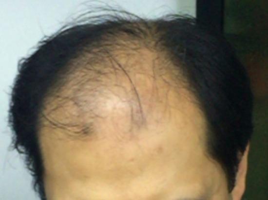 男性脱发的治是...