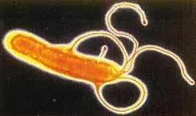 WHO에서 1급 발암물질로 규정한 헬리코박터 파일로리균 (Helicobacter pylori)