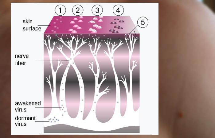 사진: 수도 바이러스가 신경을 타고 움직이다가 피부에 수포와 발진을 일으키는 대상포진 감염과정을 보여준다. 바이러스에 의한 것이므로 타인에게 전염될 수도 있다. [대상포진 원인과 증상]
